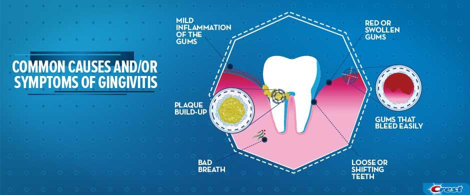 What Is Gingivitis Symptoms Causes And Treatments Crest