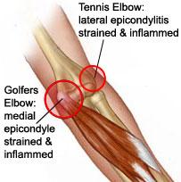 Get Rid Of Inner Elbow Pain Aka Medial Epicondylitis Aka