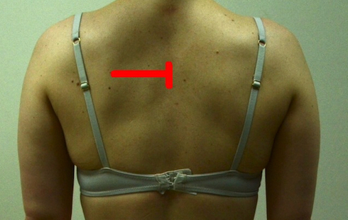 jennifer-back-smaller-with-good-color-scapular-abduction-left1 2