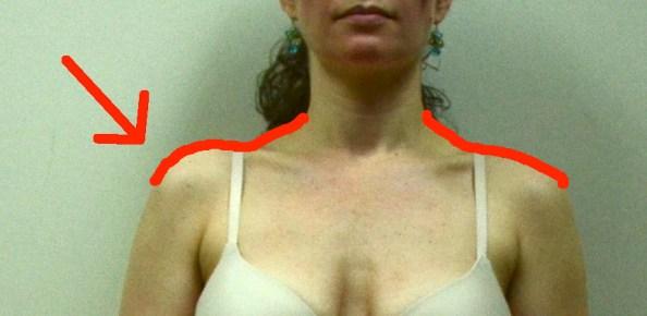Jennifer front humeral superior glide arrow comparison