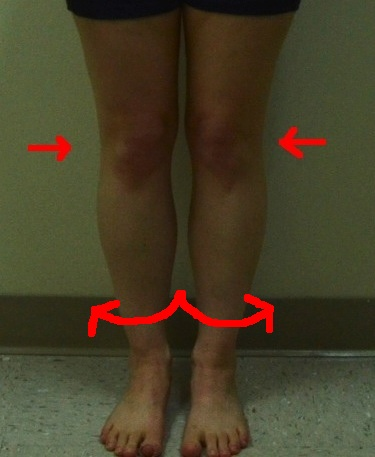 Jennifer Front (Less quality) internal rotation knees tibias too
