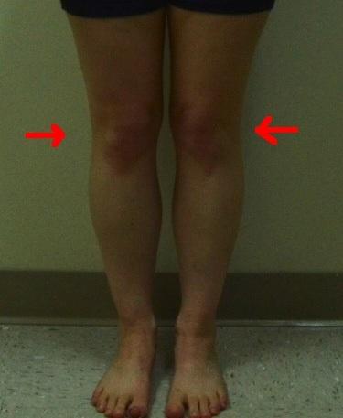 Jennifer Front (Less quality) internal rotation knees
