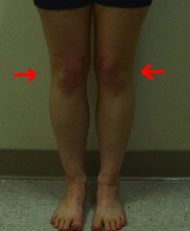 Jennifer Front (Less quality) internal rotation knees
