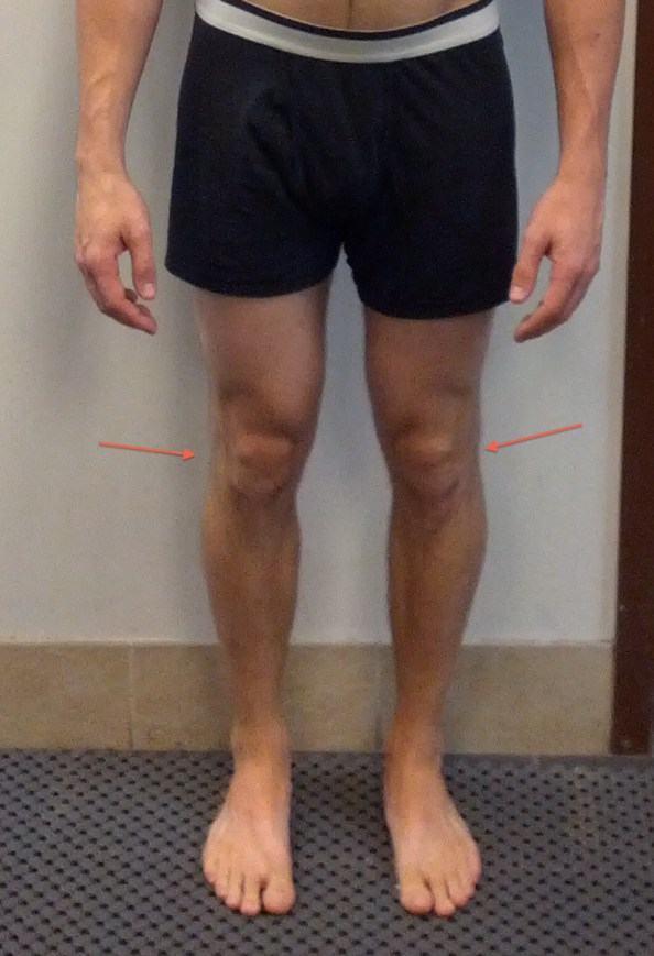 Jeremy front knee lines