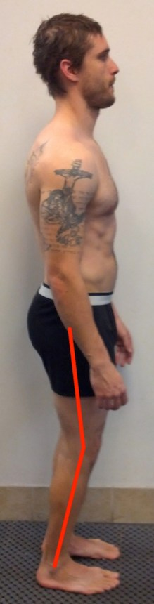 jeremy-side-knee-lines 2