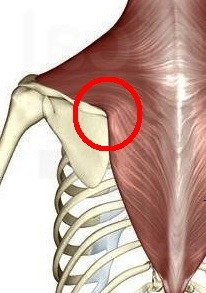Trapezius on top of scapula flipped