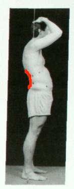 Swayback posture more lordosis lumbar extension line
