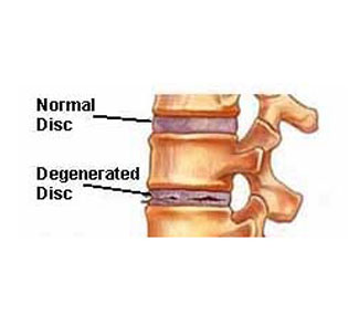 Normal versus degenerative disc