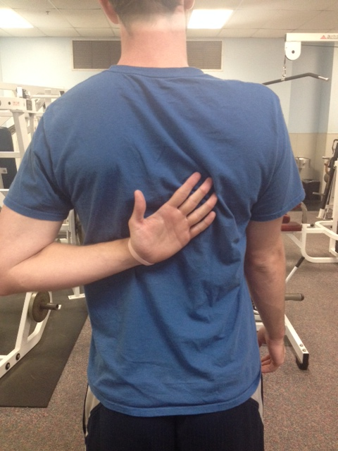 Scapular winging corrected 2
