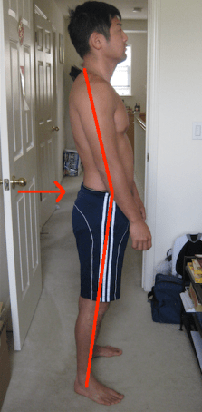 Tony Hip Extension with swayback lines