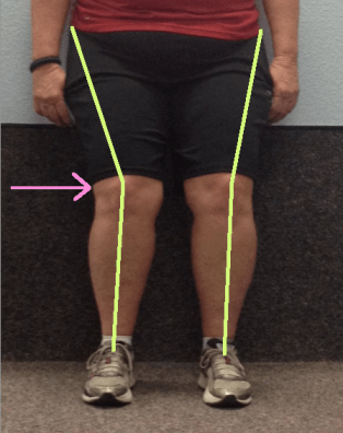 Sharon Knee alignment close up with lines and arrow