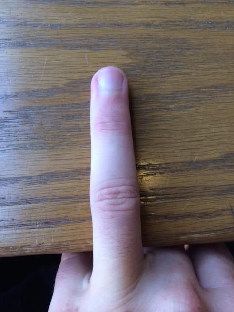 Left ring finger