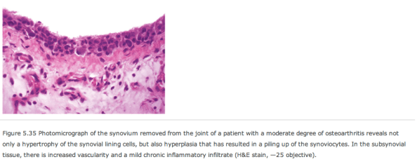 Synovial membrane extra cells pathology
