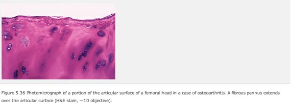 Synovial membrane rough edge pathology