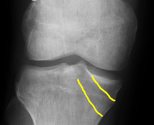 ACL X Rays Close Up Right 1 with lines