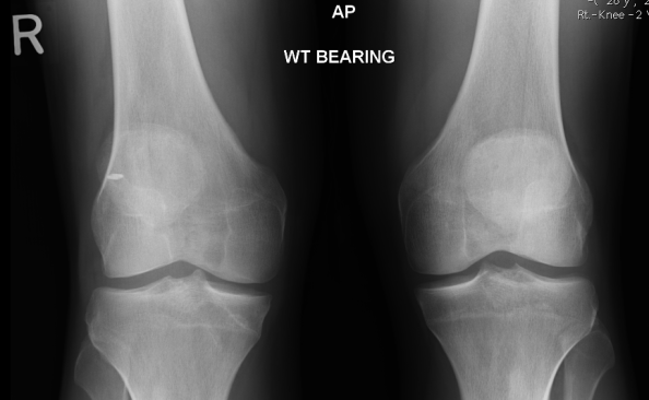 ACL X Rays Left And Right