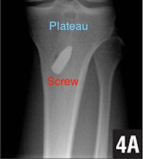 Tibial interference screw x ray with text