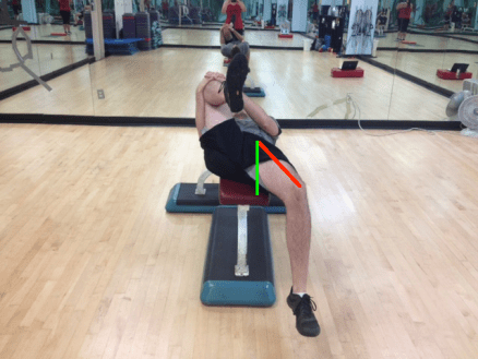 Supine Hip Extension Abducted Thigh (Me) with two lines