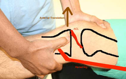 ACL lachman with hamstring line
