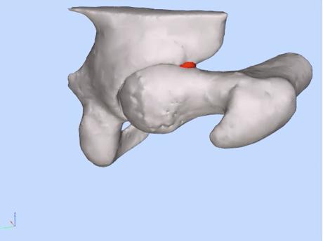 Hip Flexion compression