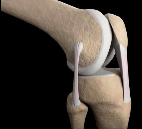 Knee flexion more bent