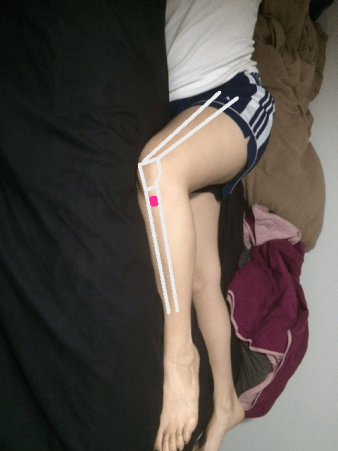 Rotated to clarify how tibial tuberosity (pink spot) is lateral to kneecap.