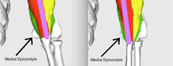 snapping triceps medial epicondyle rubbing difference