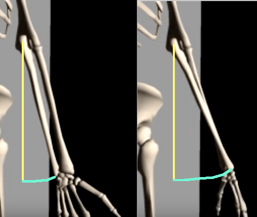 Ulna comparison forearm neutral to pronated