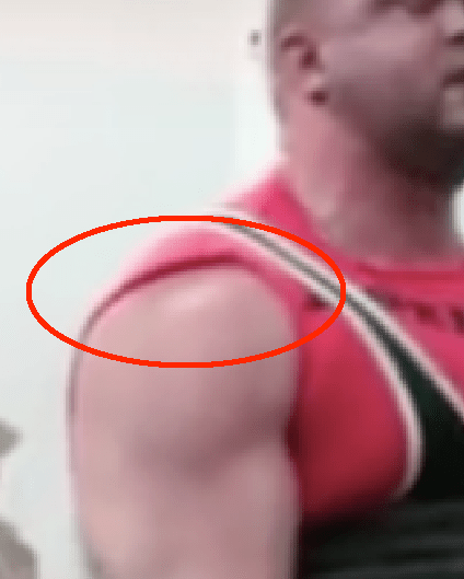Deadlift sulcus sign close up 1