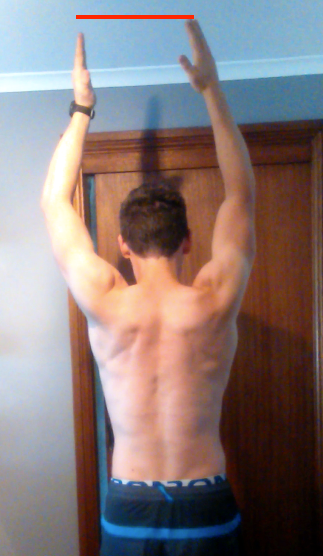 After shoulder surgery one arm can't get as high