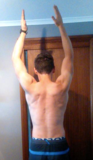 Angus asymmetric arm raise overhead after surgery