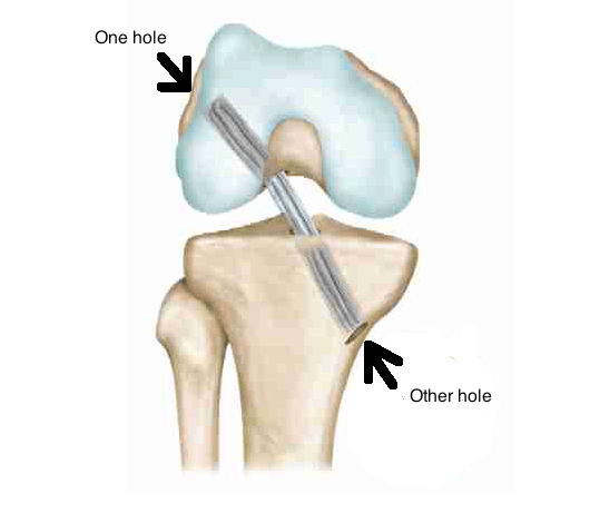 ACl surgery drill holes