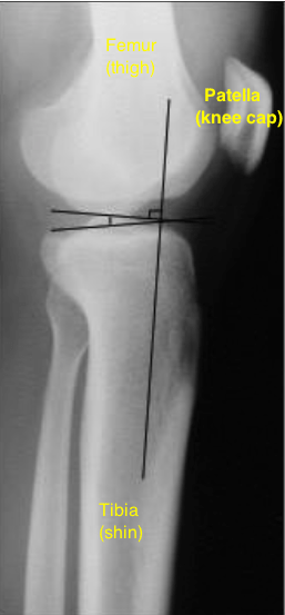 Tibial slope x ray with bones