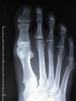 hallux-interphalangeus-2