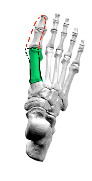 hallux-valgus-sesamoids-closer-up-first-metatarsal-lines-more-lines