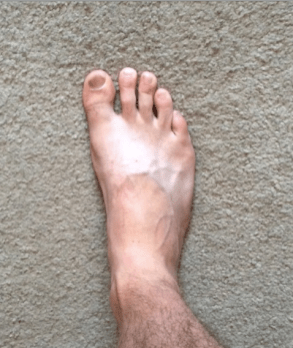 right-foot