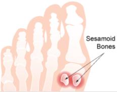 sesamoid-bones-2