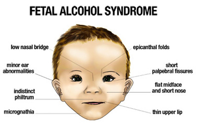 fetal alcohol syndrome facial features