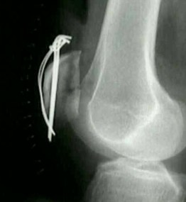 Fracture patella surgery
