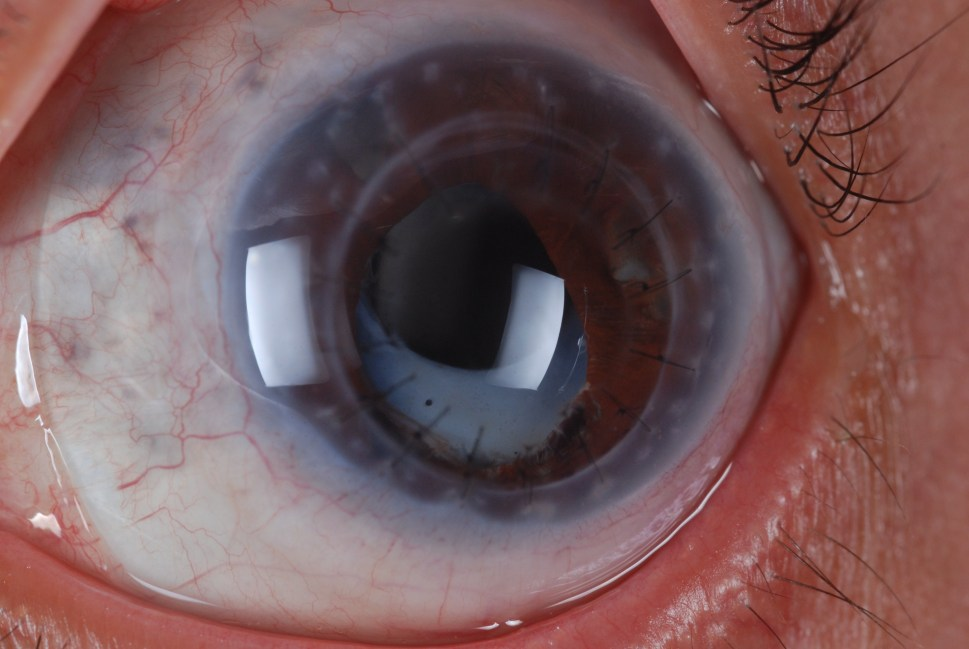 Example of Scleral lens fit over corneal transplant
