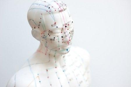 akupunktúra