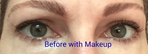before with makeup