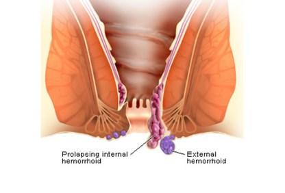 hemorrhoids-s3-illustration-of-external-hemorrhoids