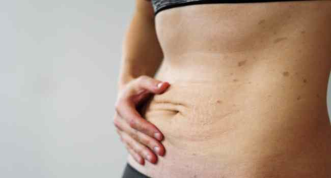 How To Prevent Stretch Marks During Pregnancy
