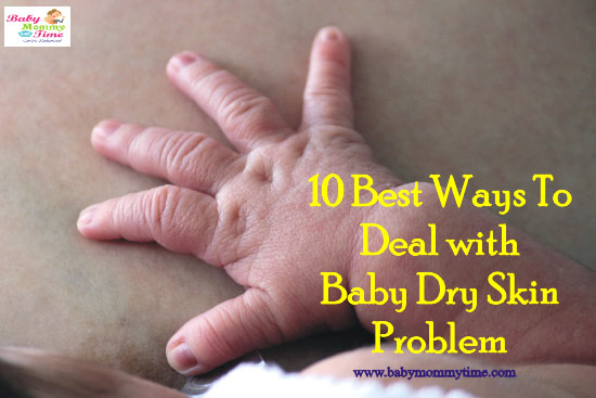 10 Best Ways To Deal with Baby Dry Skin Problem