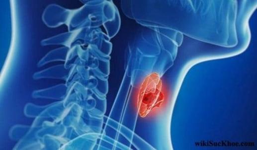 Ung thư tuyến giáp nguy hiểm tới tính mạng con người
