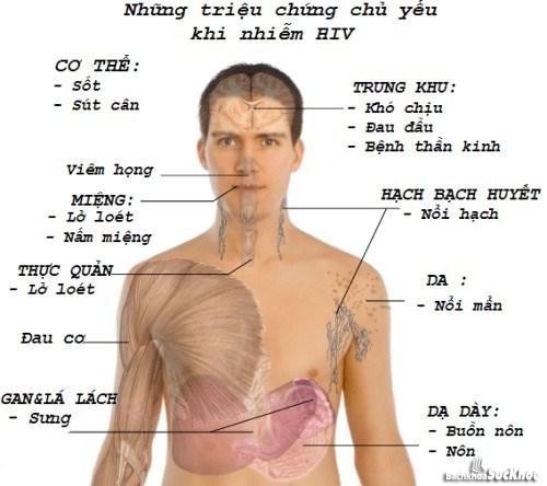 Triệu chứng bệnh HIV/AIDS
