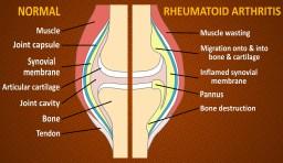 Affects of Rheumatoid Arthritis on a joint