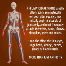 Rheumatoid Arthritis usually affects joints symmetrically