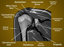 MRI of subacromial space